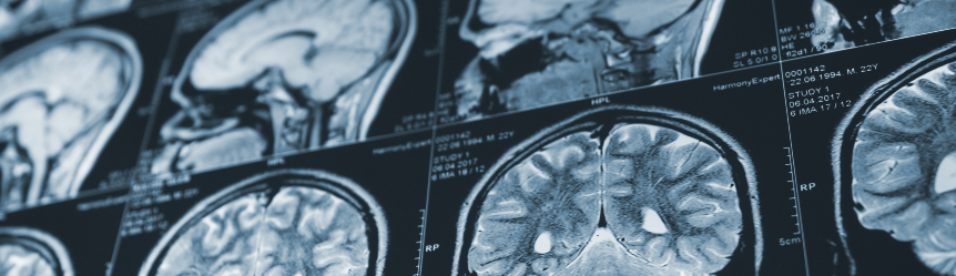 Cognitive Exercises You Can Do at Home for TBI